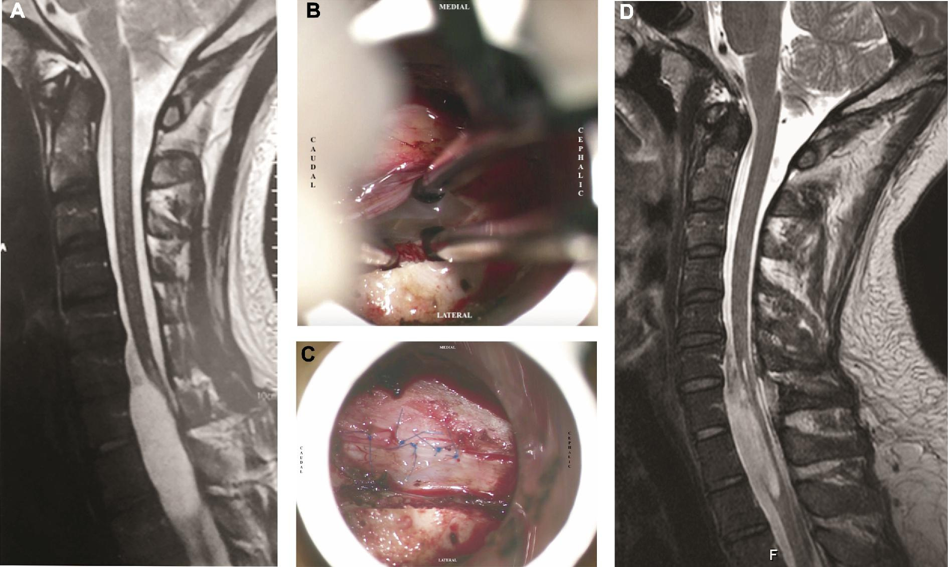 The cyst was observed and fenestrated