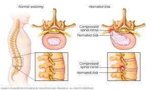 hernia disco 1