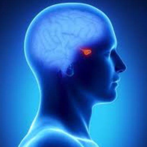 adenoma de hipofisis